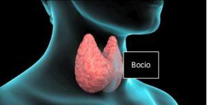 Bocio tiroides