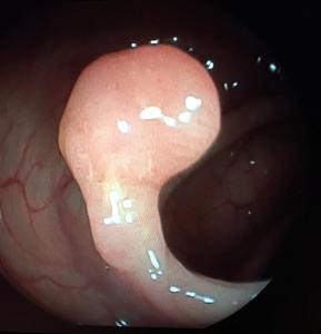 Visión endoscópica de un pólipo
