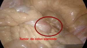 Visión de cáncer de colon sigmoide por laparoscopia